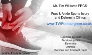 Mr. Tim Williams, Consultant Orthopaedic Specialist Foot and Ankle Surgeon